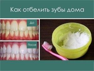 Действие соды при чистки зубов