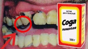 Как чистить зубы для отбелиания